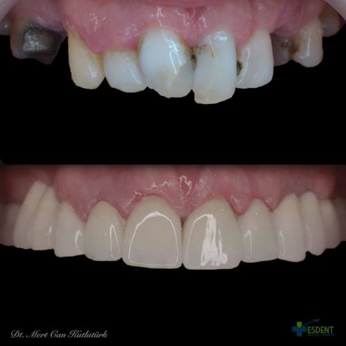 Full jaw aesthetic zirconia crowns for our international patient.