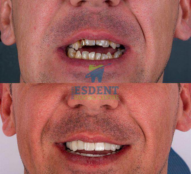 Darren Before & After Zirconia Crowns OpenbiteArtboard 1