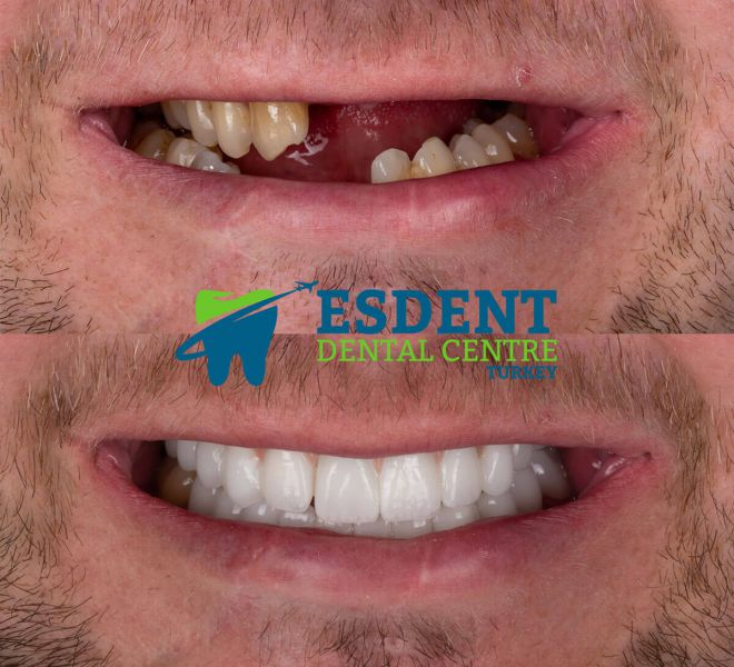 Multiple missing teeth replaced with Implant Supported zirconia bridge