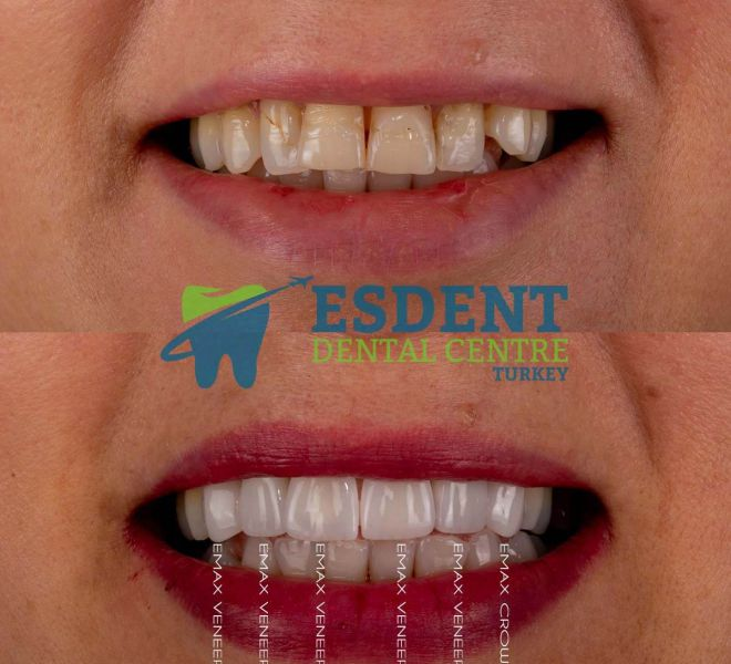 All-Ceramic crowns and laminate veneers for our patient's smile makeover to upper jaw.