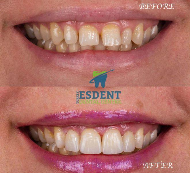 Dental Veneers for 4 upper jaw front teeth in Turkey