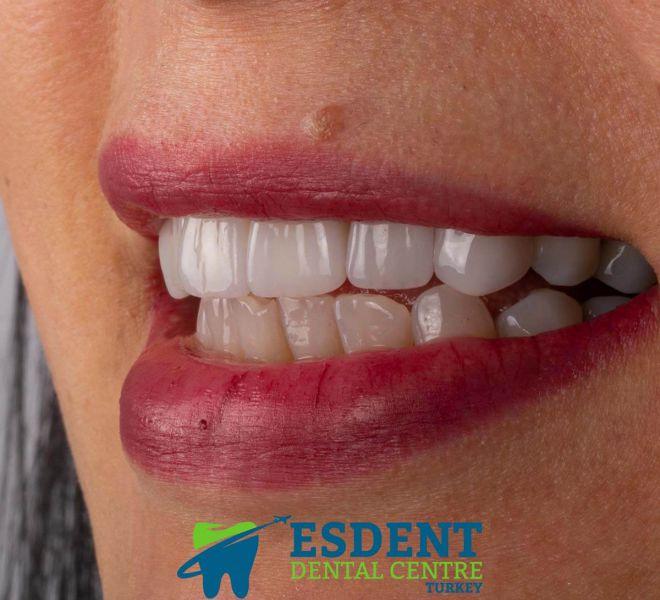Emax Laminate veneers for 6 of the upper jaw front teeth in Turkey