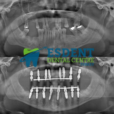 All On 8 Dental Implants Before and After x-rays