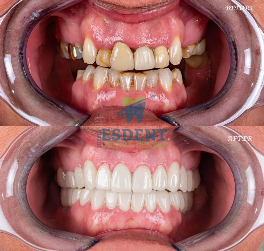 Full Smile Makeover with zirconia crowns and 2 dental implants with cheek retractor