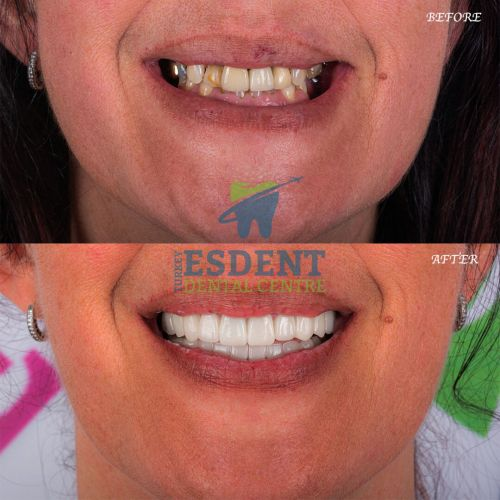 Lower face photos of Full Smile Makeover with Zirconia Crowns and 2 Dental Implants in Turkey