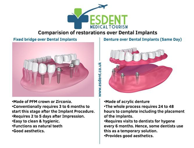 Same Day Dental Implant Turkey prosthetics comparison