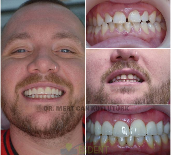 Smile makeover with zirconia veneers in turkey for our British Patient