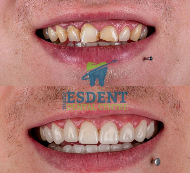 Smile makeover with zirconia crowns in Turkey