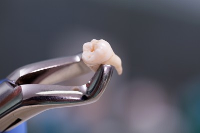 Tooth Removal in Esdent Dental Centre Turkey