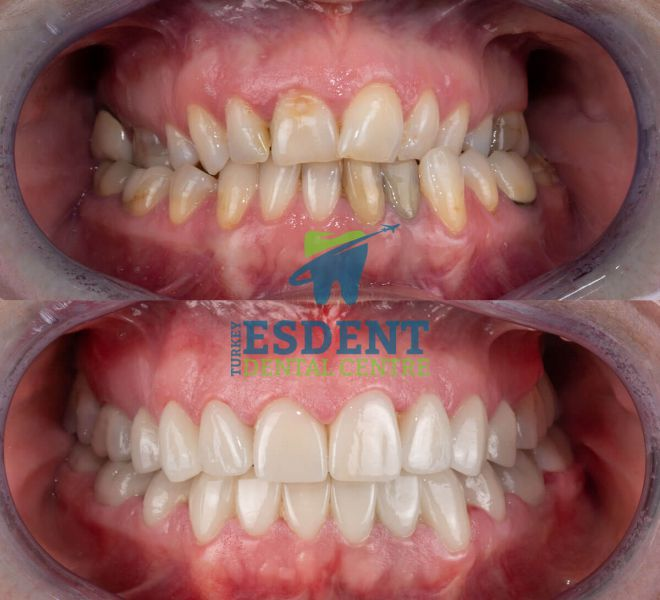 Full smile makeover with zirconia veneers for our british patient in Turkey