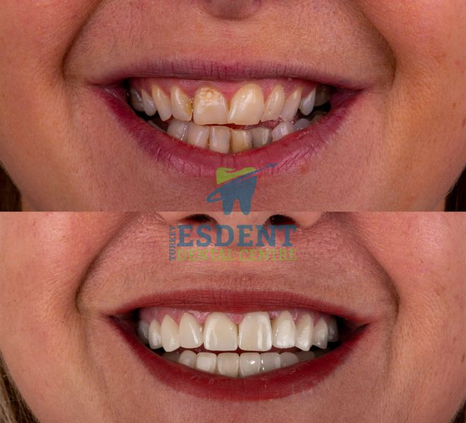 Lower face before after photos of our patient who had zirconia crowns