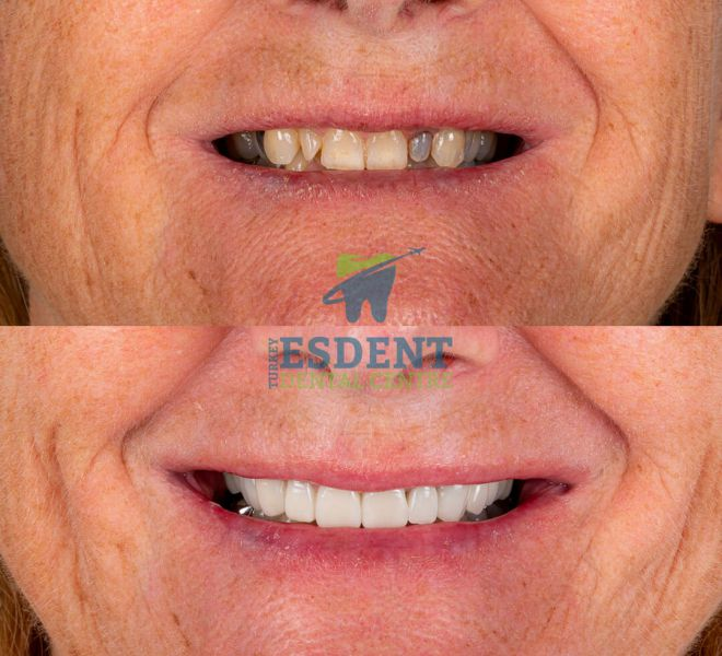 Dental Veneers in Turkey for our patient from the UK