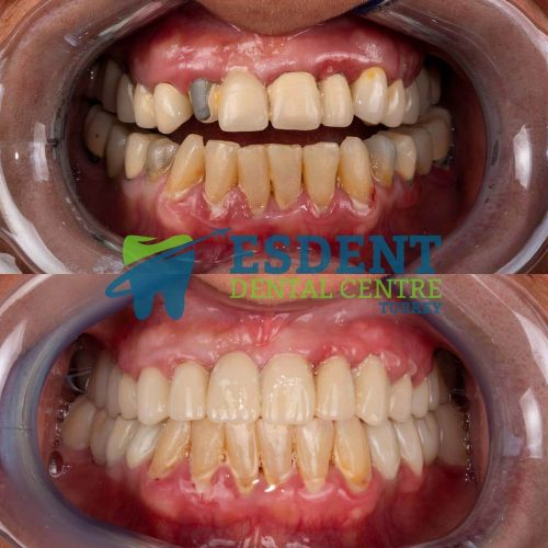 Porcelain Metal Bridge replaced with aesthetic dental crowns.