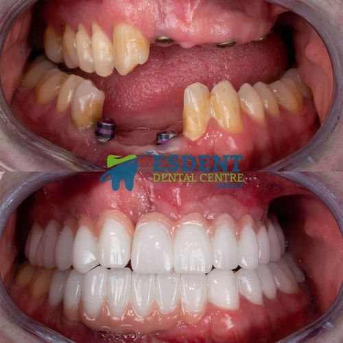 Before and after photos of implant supported dental bridge.
