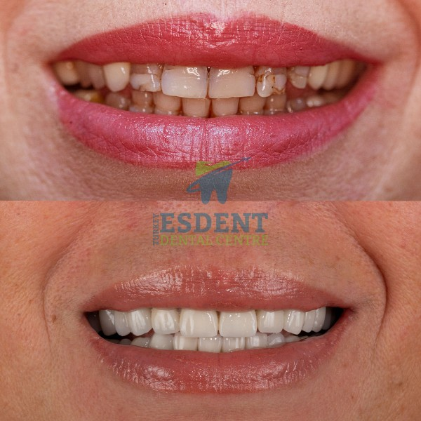Full smile makeover with zirconia crowns in Esdent Dental Centre Turkey